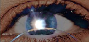 Bild på ett öppet öga med upplyst pupill.