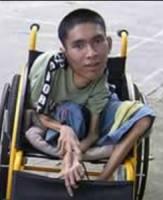 Bild på funktionshindrad man från Vietnam